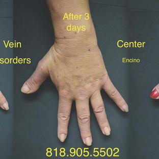 Vein Disorder Resolved by Dr. Goren 9