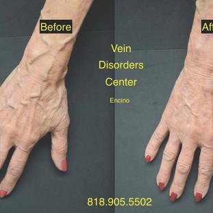 Vein Disorder Resolved by Dr. Goren 4