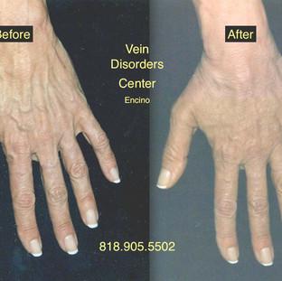 Vein Disorder Resolved by Dr. Goren 11