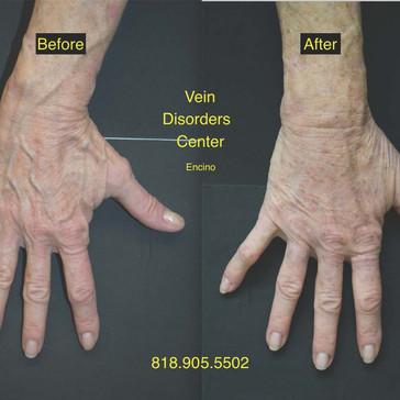 Vein Disorder Resolved by Dr. Goren 2