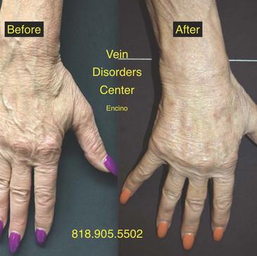 Vein Disorder Resolved by Dr. Goren 1
