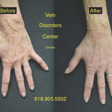 Vein Disorder Resolved by Dr. Goren 5