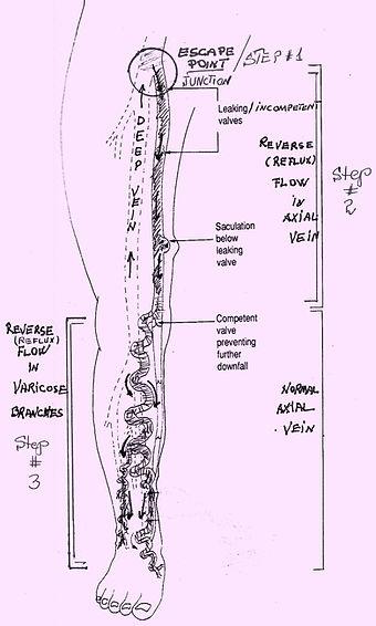 downward flow in truncal varicose veins