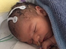 British Baby First to Get New Cannabis Medicine