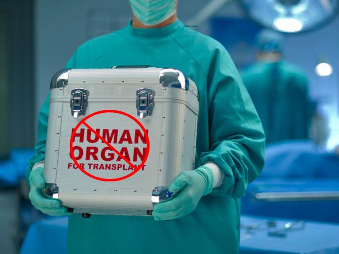 Canna News Marijuana Organ Transplant.jpg
