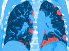 Cannabis May Reduce Deadly COVID-19 Lung Inflammation