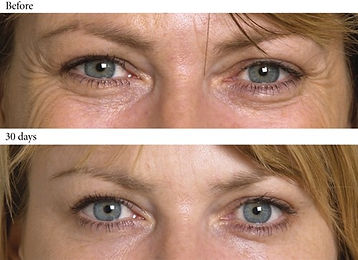 Crows-Feet-Before-and-After1.jpg