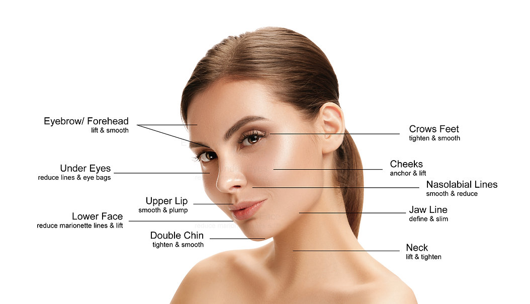 face thread lift2-1.jpg