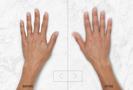 filler restylane hands.jpg