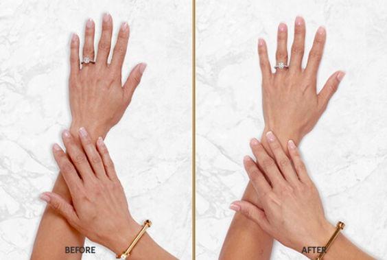 filler restylane hands 2.jpg