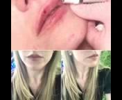 Juvederm lip fillers