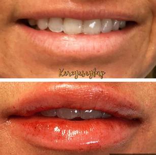 Lip Augmentation