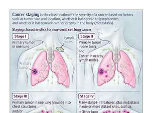 Stages of Lung Cancer.PNG