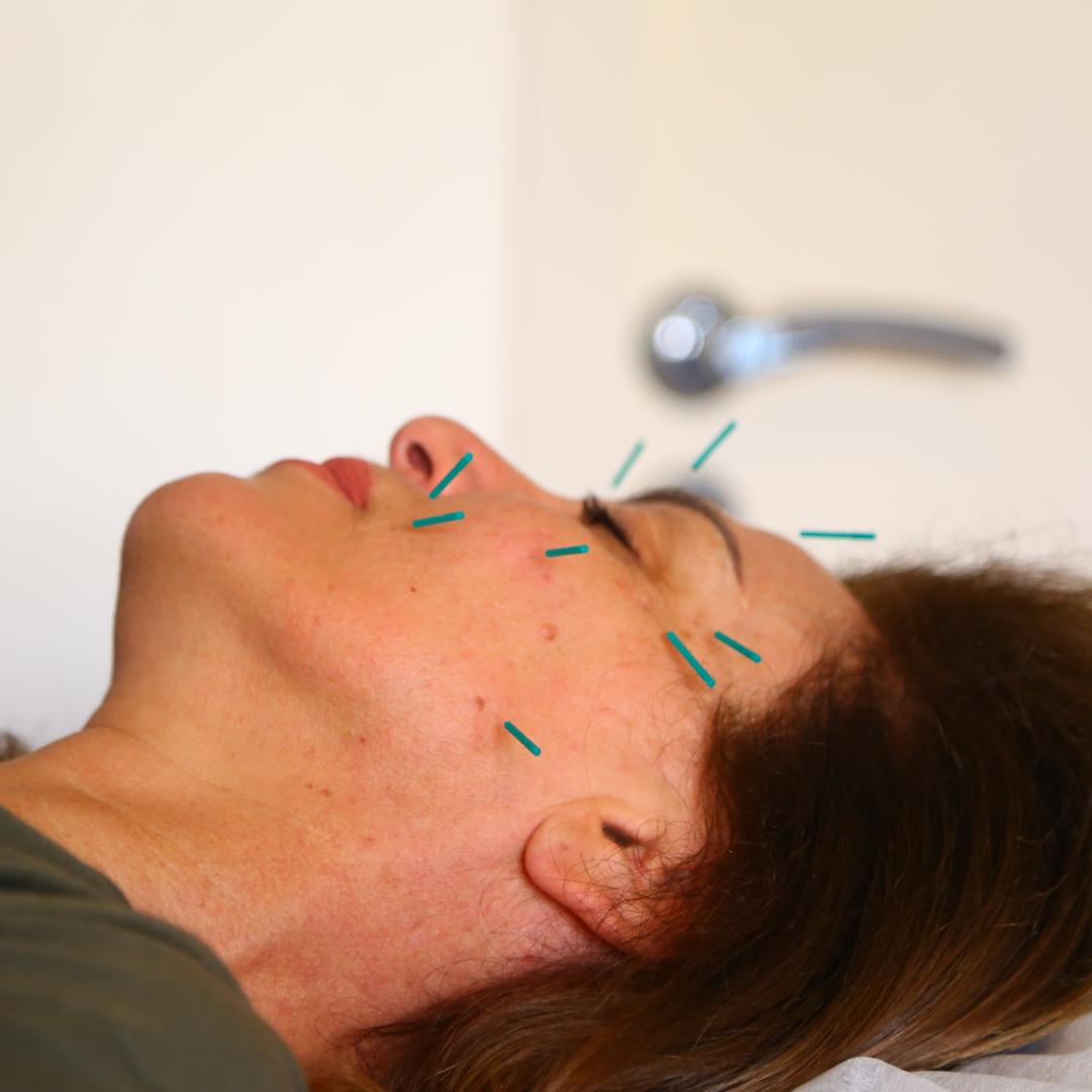 Anti-Ageing Acupuncture