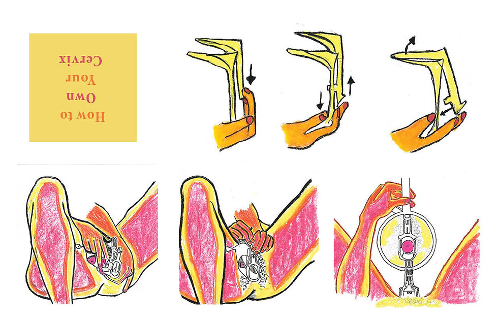 A Diagram of How To Use A Speculum Drawn In Bright Pink, Yellow, Orange and Black. Upside Down Text in Shades of Yellow and Pink. Visually Draw Instruction on How To Examine A Womens Cervics