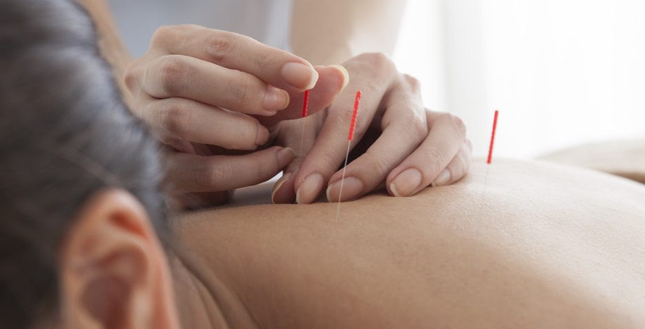 Does Acupuncture Help with Pain?