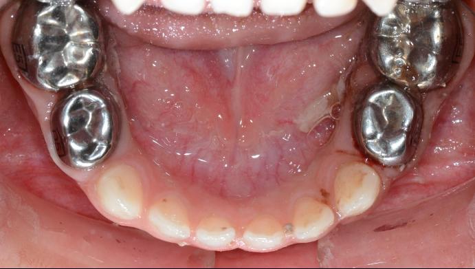 圖:小鋼牙的臨床照片