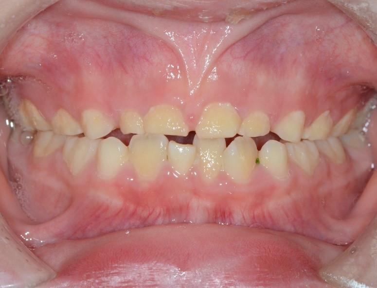 圖:磨牙孩童與非磨牙孩童的口腔差異