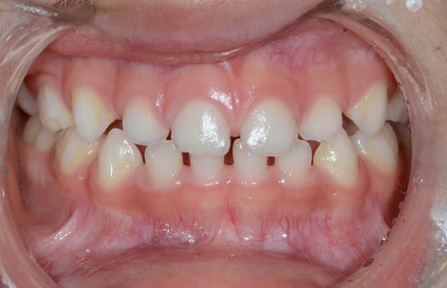 (圖:沒有磨牙患者,牙齒高度正常)