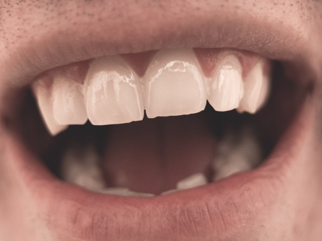 【小學中高年級必看】原來「剔牙」這麼重要!!