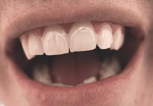 圖一、牙齒是個3D的立體構造,牙刷只能清潔一部份