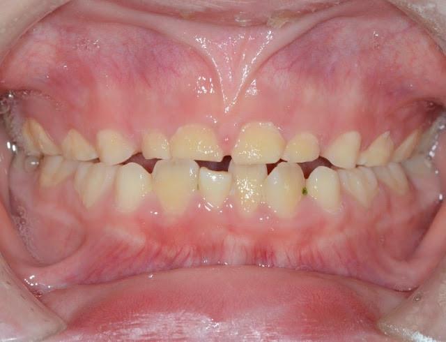 (圖:磨牙患者,牙齒高度已經喪失)