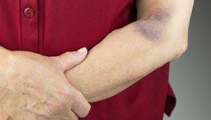 elderly bruising risks