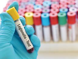 Legionella concern as office buildings reopen