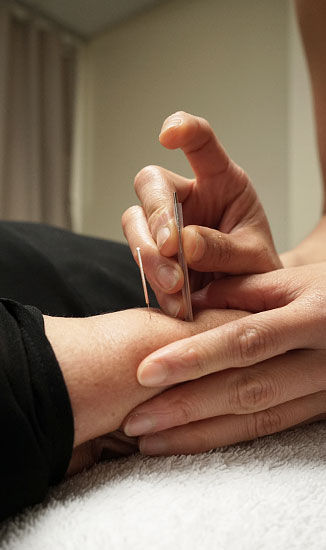 Dry needling physiotherapy treatment in Brisbane
