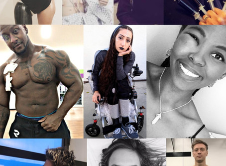 But You Look Fine: The Reality of being Young & Disabled