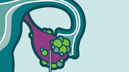 Sintomas e tratamentos do câncer de ovário