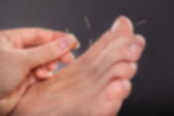 Podiatrist giving acupuncture