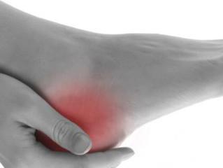 Heel pain - plantar fasciitis