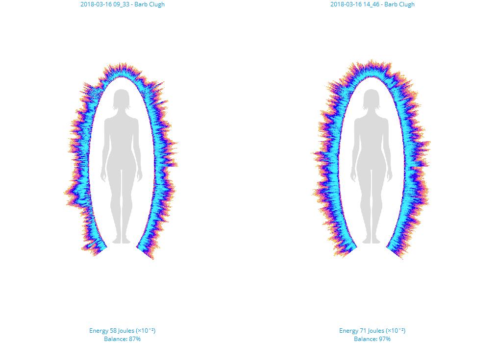 Bio-Well imaging of energy field.