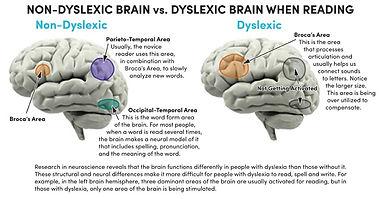 About Dyslexia.jpg