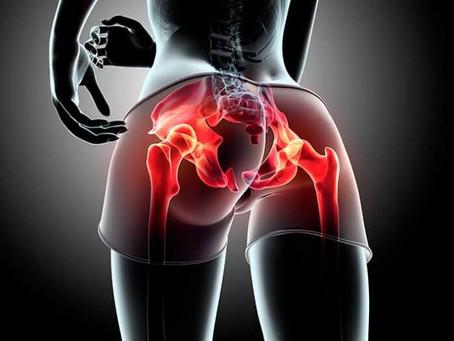 Estágio de Especialização em Cirurgia do Quadril, Pelve e Acetábulo