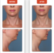 DOUBLE CHIN, FAT DISSOLVE, LOSE FAT, LOOSE SKIN, TURKEY NECK