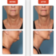 FAT LOSS, DOUBLE CHIN, FLABBY NECK, NECK FAT, DISSOLVE FAT