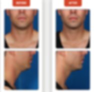 DOUBLE CHIN, FAT REDUCTION, FAT DISSOLVE, TURKEY NECK