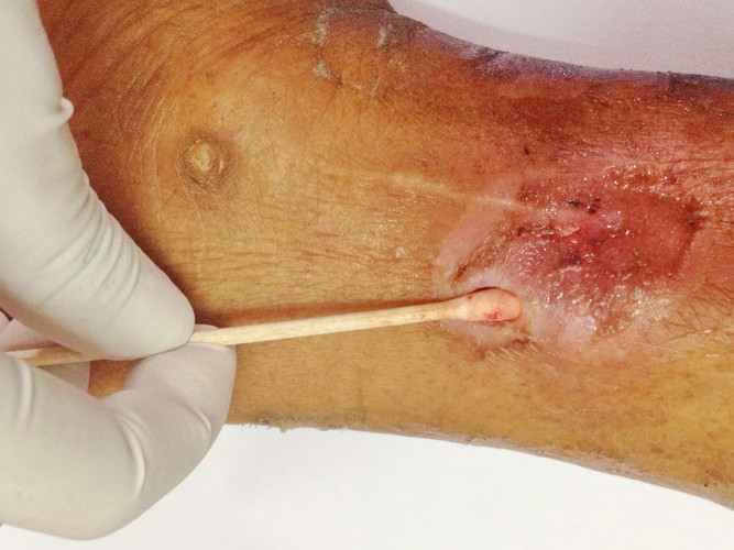 jvb wound dressing pic.jpg