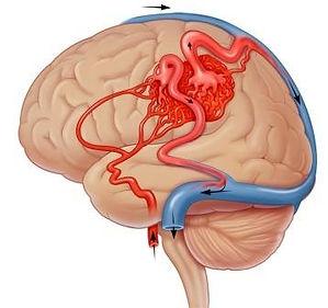 arteriovenöz malformasyon