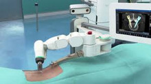 New robotic technology increases the safety and precision of spinal fusion surgeries