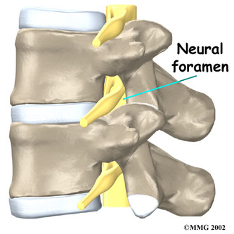 Nöral Foramen - Nöral Foraminal Daralma