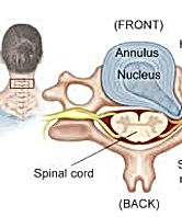 cervical disc herniation.jpeg