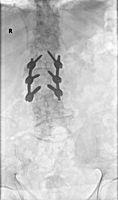 omurga kırığı transpediküler fiksasyon ile füzyon ameliyatı sonrası