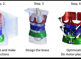 First dynamic spine brace characterises spine deformities