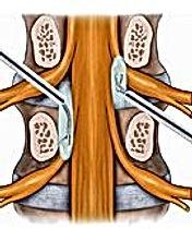 kapalı endoskopik bel fıtığı ameliyatı_j