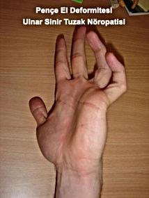 pençe el deformitesi, ulnar sinir sıkışması