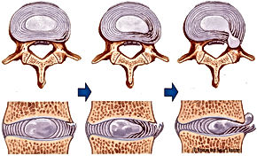 Disc herniation stages