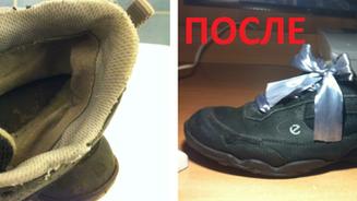 Гилозоизм: обувь скажет Вам СПАСИБО